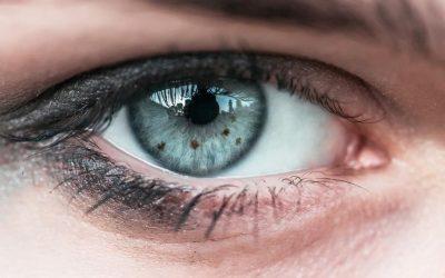 Nevus Lunar en el ojo.